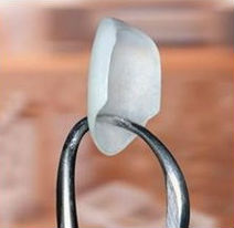 Photo of a single porcelain veneer held by dental forceps.