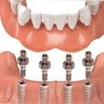 dental implants anchoring dentures