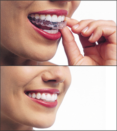 A woman putting in her Invisalign aligners in two stacked images