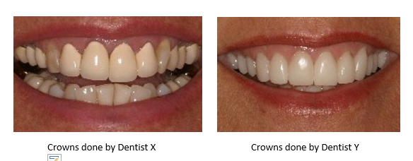 Side by Side images of dental crowns done by two different cosmetic dentists on the same smile. One is ugly. One is beautiful