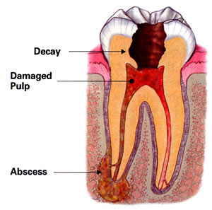 Illustration of an abscessed tooth