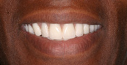 After dentures photo of a patient's smile that was restored with dentures.