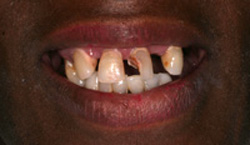 Before dentures photo of upper teeth that are misshaped, missing, and damaged.