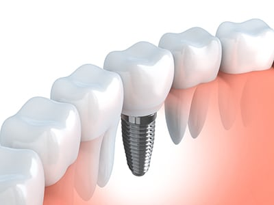 illustraition of a dental implant next to natural teeth
