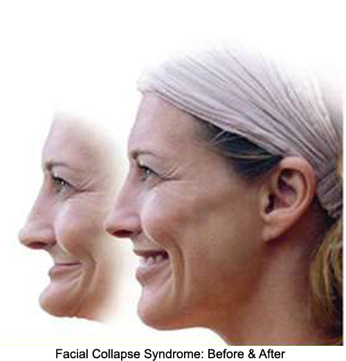 before and after side images of a woman suffering from facial collapse