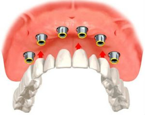 dentures about to be secured to six dental implants