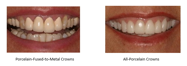 crowned front teeth without all-porcelain crowns and then with