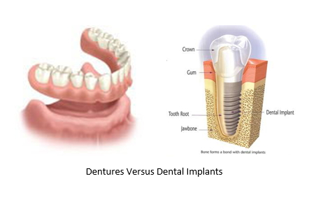 side by side comparison of dentures and a dental implant