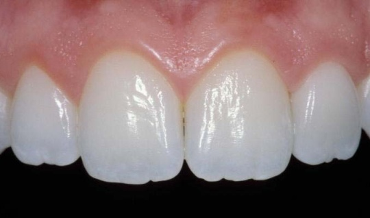 Teeth with a natural shine