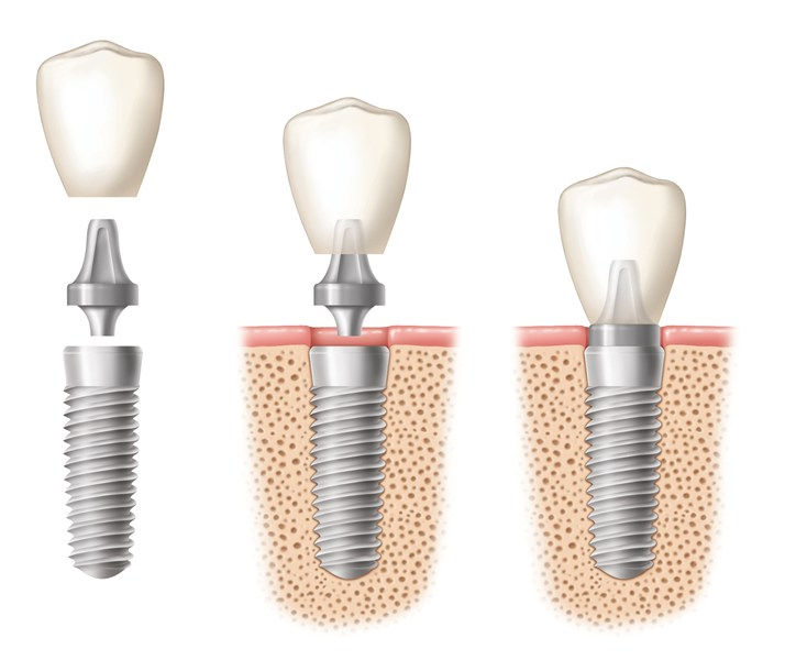 Illustration of dnetal implants being placed in three stages.