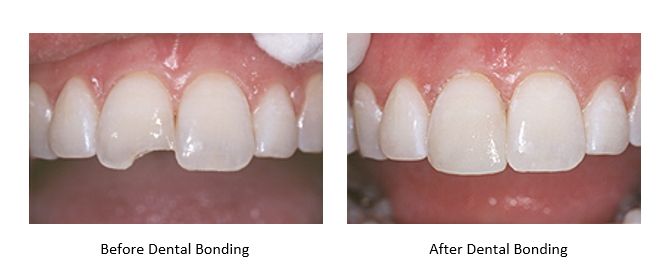 Before and After Dental Bonding-