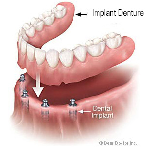 Implant denture - available in Salem, MA from Burba Dental