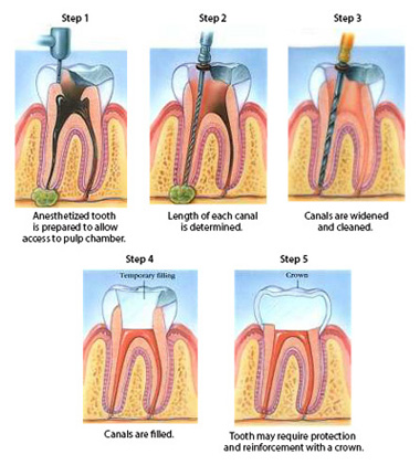 Diagram with five states of root canal treatment