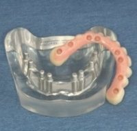 A hybrid dental implant before it's placed in the patients mouth.