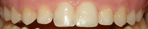 A pair of teeth with no white spots after being treated with icon.