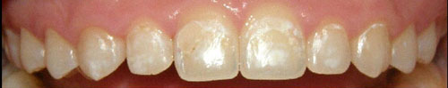 Teeth before icon (white spots visible.)