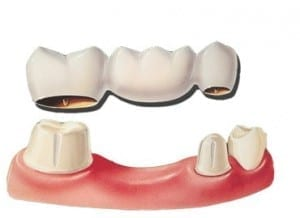 Burba dental bridge diagram