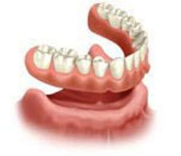 Salem, MA dentures offers complete dentures that just rest over your gums.