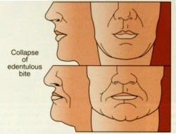 A diagram showing the damage done to your physical appearance with facial collapse.