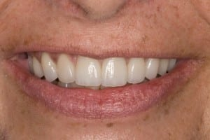A picture of Pam's teeth after getting Salem, MA porcelain crowns.