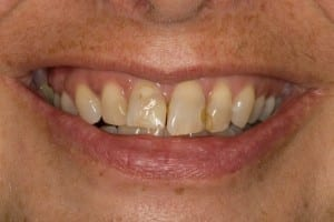 Pam's smile before getting Salem, MA porcelain crowns