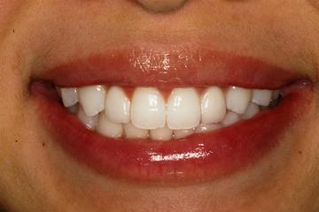 Showing porcelain veneers placed by Boston cosmetic dentist Dr. Burba