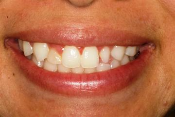 Before Dr. Burba's porcelain veneers