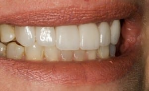 After Boston Dental Implants