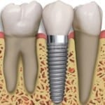Boston dental implant